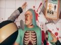 《外科模拟2》游戏截图-4